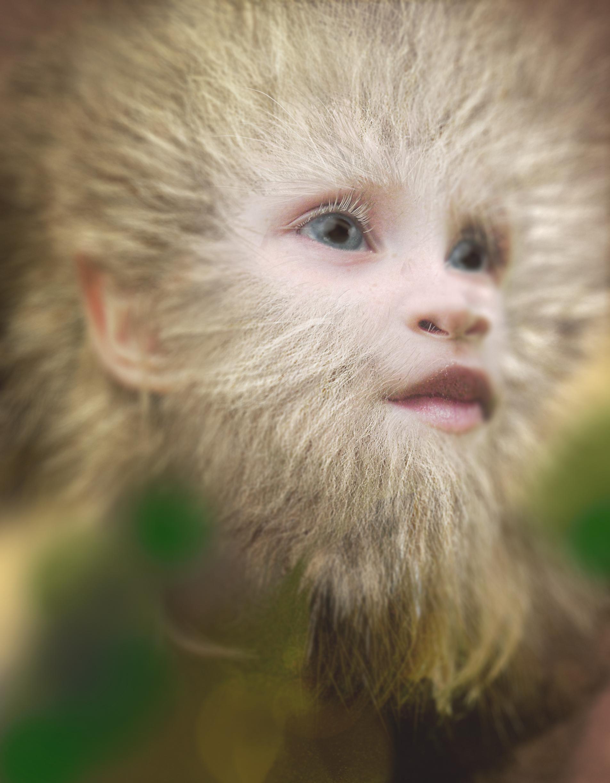 Albino knoezel